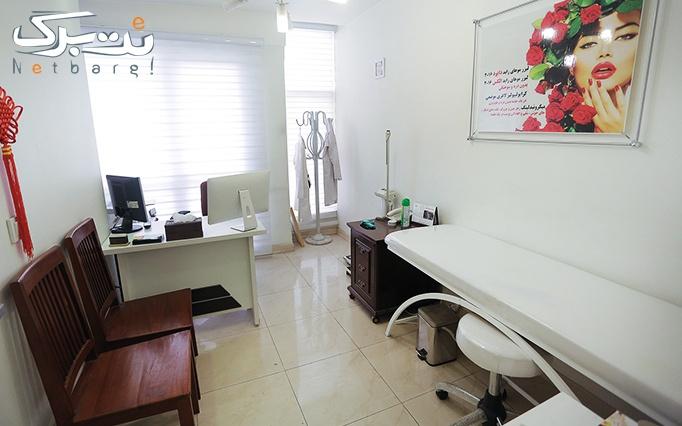 لیزر الکساندرایت در مطب خانم دکتر وترتمیجانی
