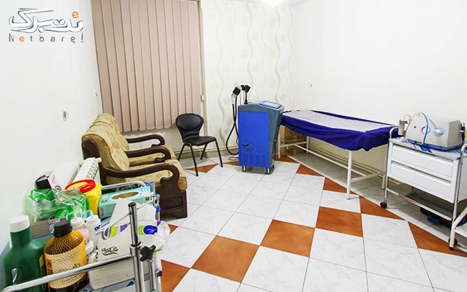 میکرونیدلینگ در مطب خانم دکتر شریفی
