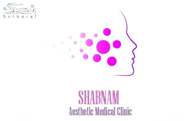 الکساندرایت کندلا در مطب دکتر شبنم ایزدی
