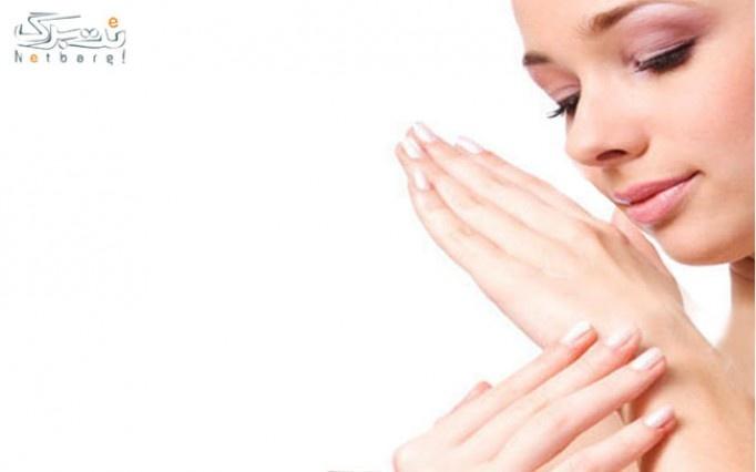 پارافین تراپی در درمانگاه تخصصی پوست و مو اسپادانا