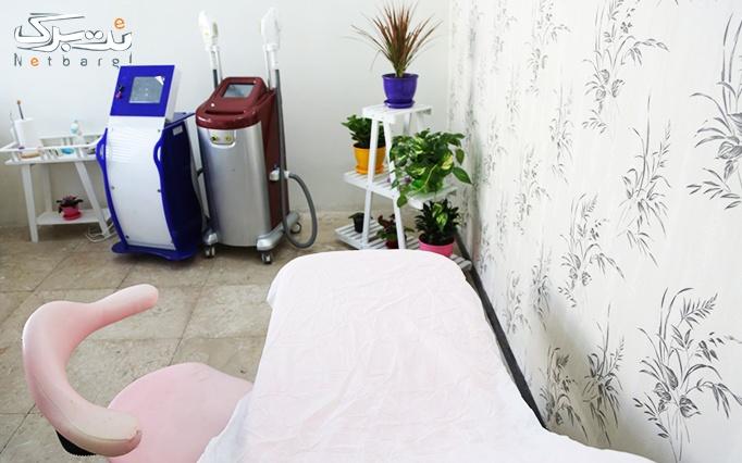 لیزر دایود در مطب دکترفتحی