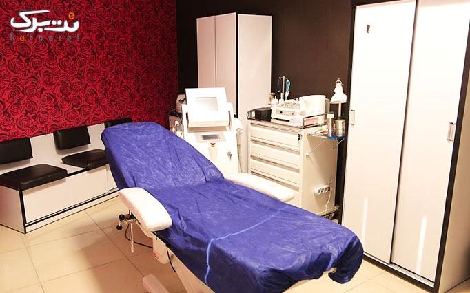 لیزر الکساندرایت در مطب  دکتر صالحی