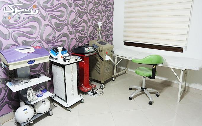 RF یا کویتیشن درمطب دکتر سنگ سفیدی