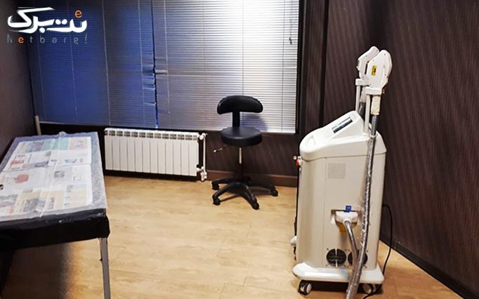 لیزر SHR در مطب دکتر عبدالملکی