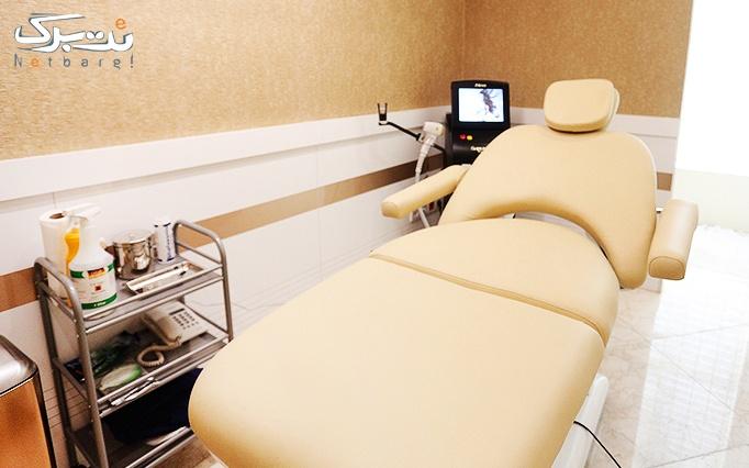 کرایولیپولیز در درمانگاه تخصصی پوست و مو رخ آرا