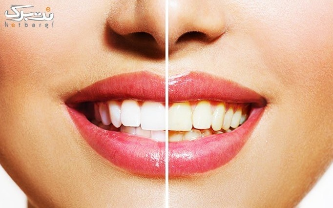 بلیچینگ دندان در مطب دکتر شیردل
