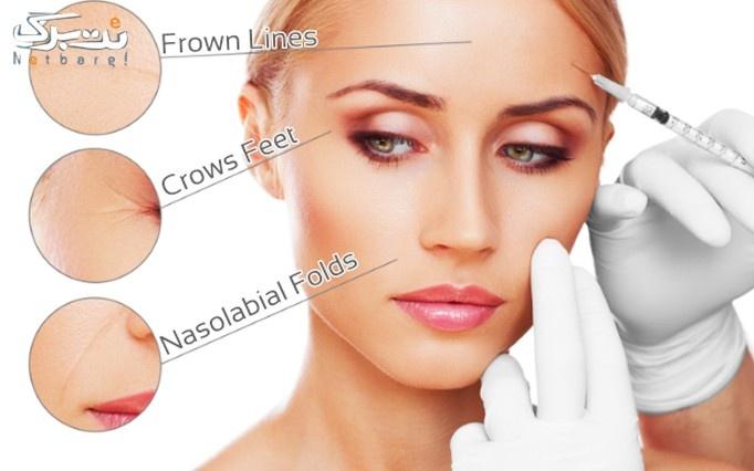 مزوتراپی سر یا صورت در مطب خانم دکتر عرفانی