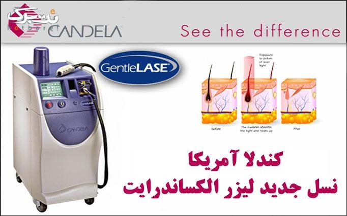 لیزر الکساندرایت کندلا در مطب دکتر بیات