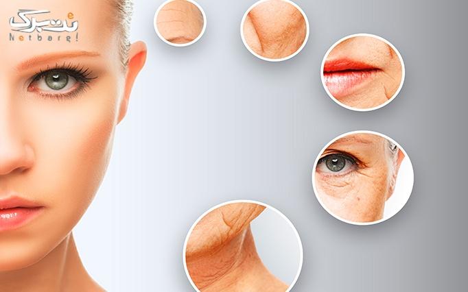هیدرودرم پوست در مطب دکتر جهانگیری