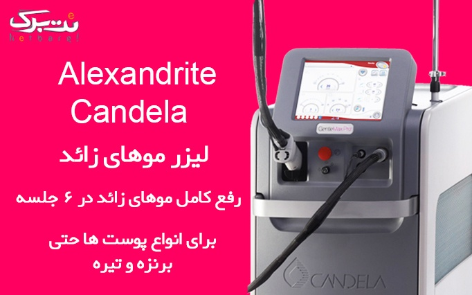 لیزر الکس Gentelemaxpro در مطب دکتر حاجیان