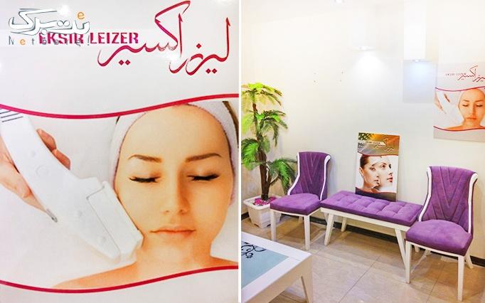 لیزر SHR در مطب دکتر نوری(اکسیر)