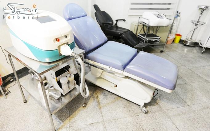 میکرونیدلینگ در مطب دکتر رستمی