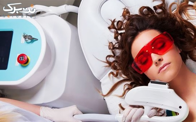 لیزر 2018 SHR در مطب پوست و موی آلفیا