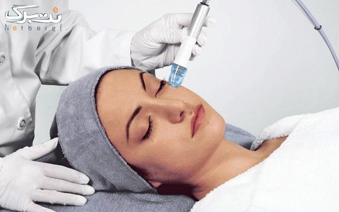 آکوافیشیال پوست در مطب پوست و موی آلفیا