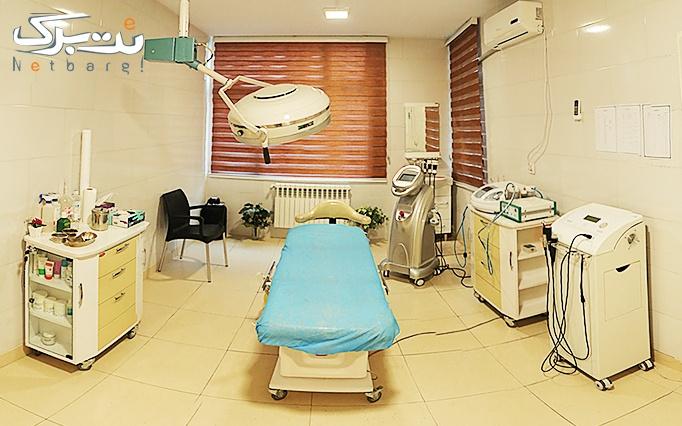 لیزر الکساندرایت در مطب دکتر طباطبایی