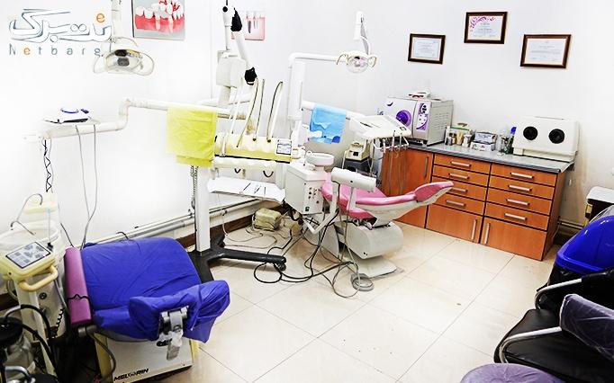 لمینت کامپوزیت دندان در مطب دکتر عزیزی