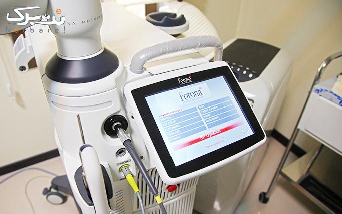 لیزر الکساندرایت کندلا در مطب دکتر خاکی