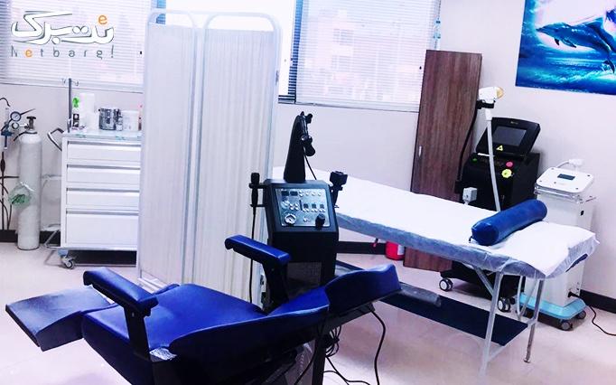 لیزر دستگاه الکساندرایت سوپرانو در مرکز لیزر یانیا