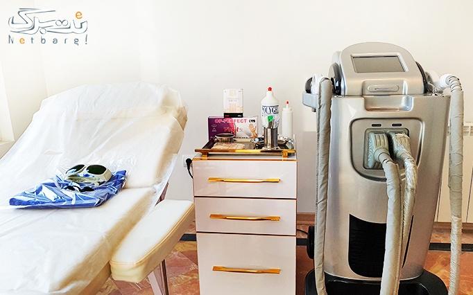 لایه برداری پوست در مطب خانم دکتر استکی
