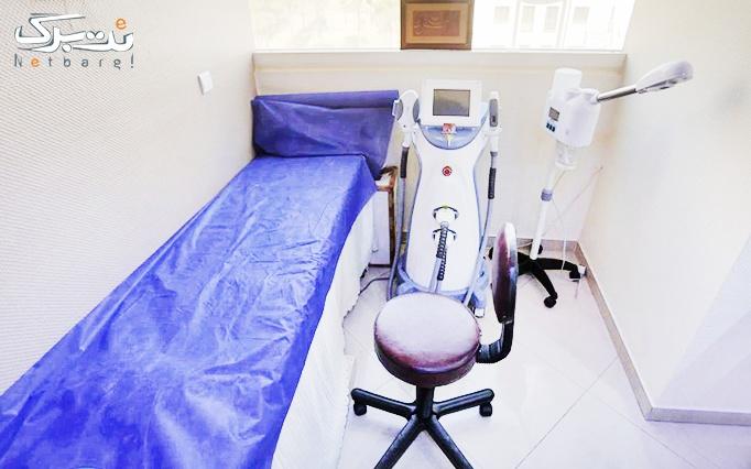 لیزر SHR در مطب دکتر بدیعی