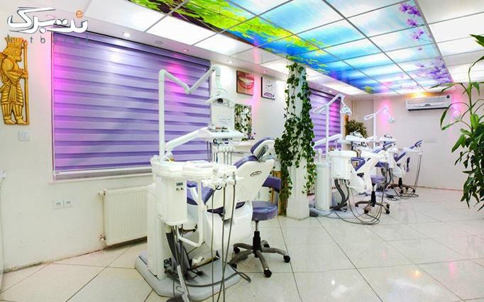 ترمیم و پر کردن دندان آمالگام در مرکز آرنا