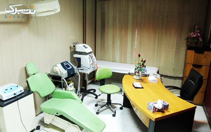 RF غبغب در مطب دکتر پاکدل