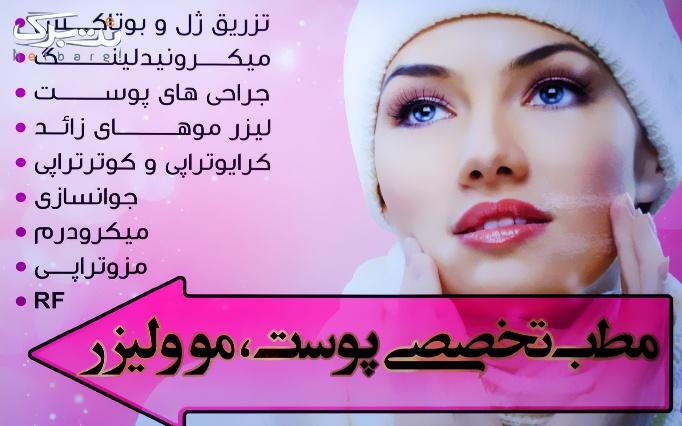 دستمزد تزریق بوتاکس دیسپورت توسط دکتر رحیمی