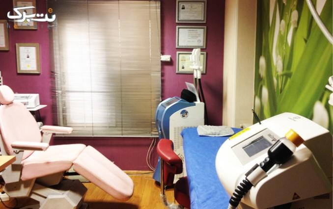 لیزر در کلینیک پوست ،مو و لیزر دکتر یزدانی