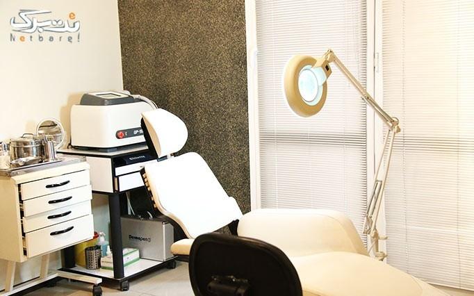 لیزر الکساندرایت در مطب دکتر رحیمی