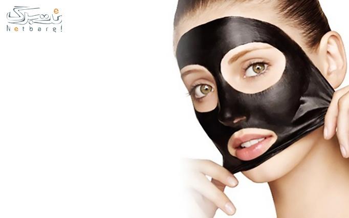 ماسک صورت ذغالی سودا از فروشگاه آراکا