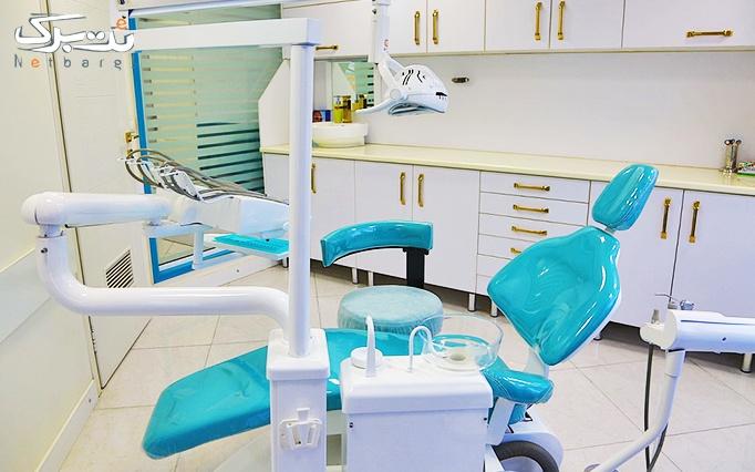 جرمگیری و بروساژ دندان در مطب دکتر سلیمانی