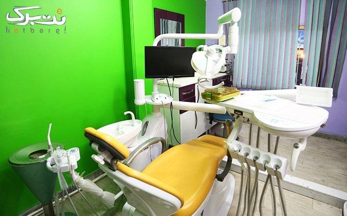 بیلیچینگ دو فک در مطب آقای دکتر احسان پور