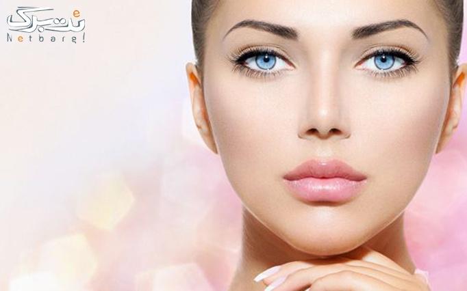 پاکسازی پوست یا ویتامینه مو در آرایشگاه شهرزاد