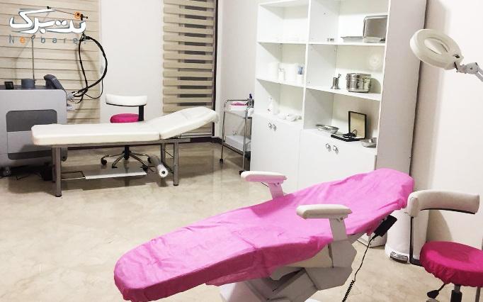 لیزر الکساندرایت کندلا در مطب دکتر مهرابی فر