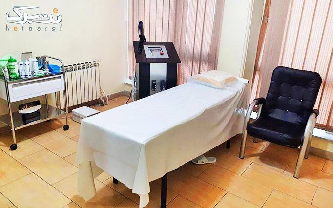 لیزر IPL در مطب دکتر عسگری