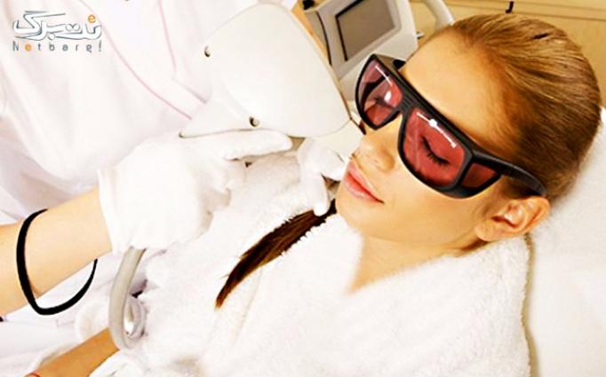 لیزرElight -SHR در مجتمع پزشکی و دندانپزشکی آیهان