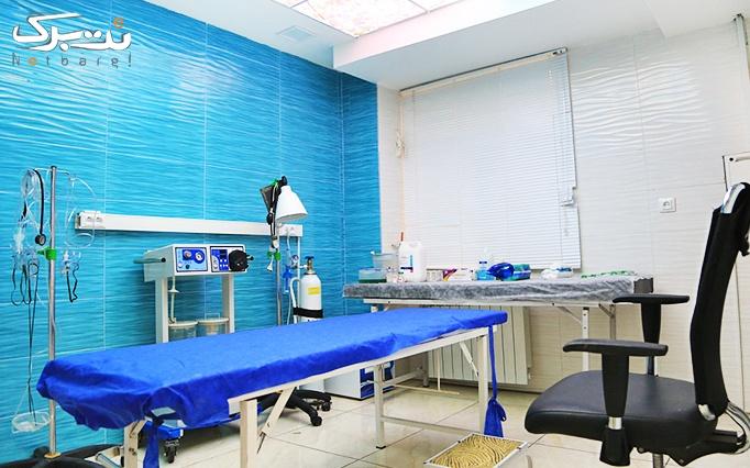 لاغری با lpg در مطب دکتر آذری