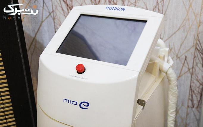 میکرودرم و هیدرودرم در مطب دکتر شمسی نژاد