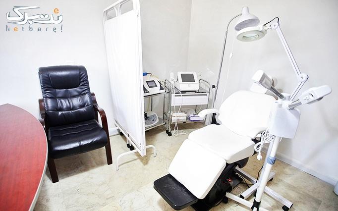 لیزر الکساندرایت کندلا در مطب دکتر موثقی