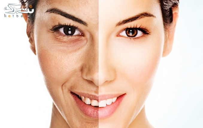 پاکسازی یا ویتامینه مو در آرایشگاه سبزناز