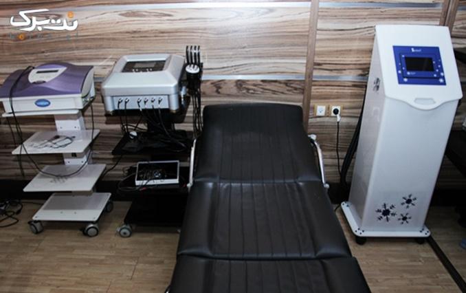 لیزر موهای زائد در مطب دکتر شیرالی