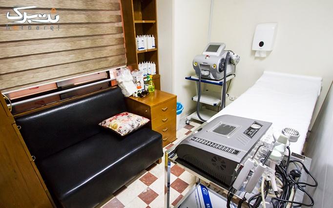 الکساندرایت رکسانا 2017 در مطب خانم دکتر صدیقی