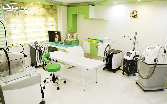 لاغری با کرایولیپولیز در مطب دکتر فولادی