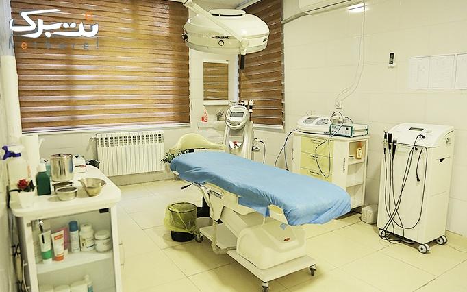 دستمزد تزریق بوتاکس در مطب طباطبایی کاشانی