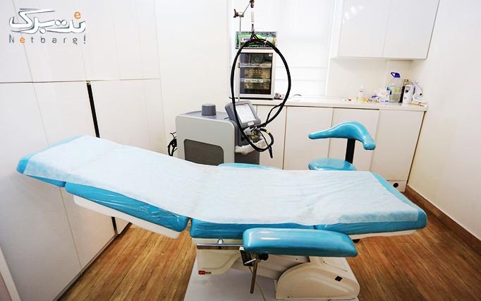 لیزر الکساندرایت در مطب دکتر یزدخواستی