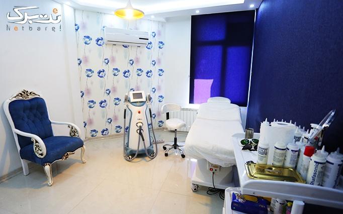 لیزر SHR در مطب آقای دکتر موسوی