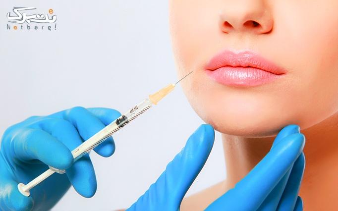 تزریق ژل و بوتاکس در مطب دکتر بیان