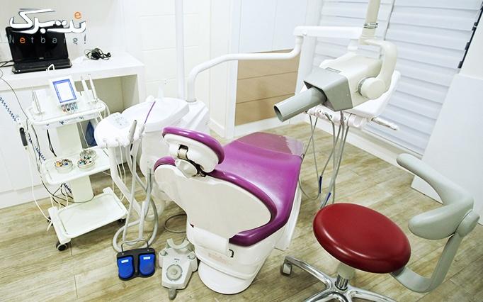 جرمگیری و کامپوزیت دندان توسط دکتر مهر جردی