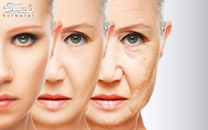 جوانسازی صورت با rf در درمانگاه اسپادانا