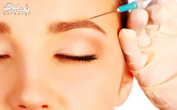 بوتاکس مسپورت در درمانگاه تخصصی پوست و مو اسپادانا